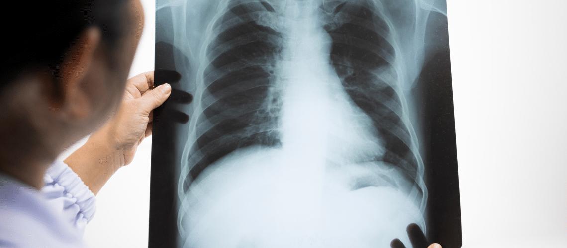 imagem de um raio x - HIPERPROTEÍCA