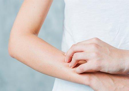 Mulher coçando braço. <a href='https://br.freepik.com/fotos-vetores-gratis/pessoas'>Pessoas foto criado por freepik - br.freepik.com</a>